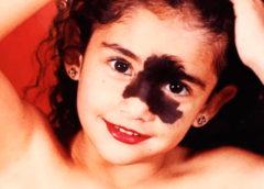Все смеялись над этой девушкой из-за её родимого пятна, а она выросла и стала моделью